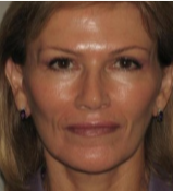 62 year old woman treated with Facelift after 3282883