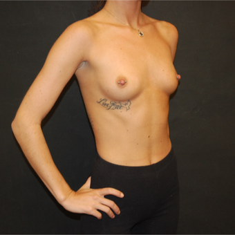 18-24 year old woman treated with Breast Augmentation before 3576669