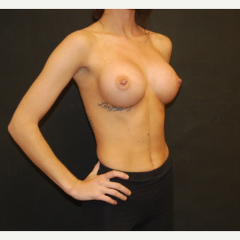 18-24 year old woman treated with Breast Augmentation after 3576669