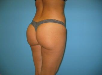 Brazilian buttock lift Beverly Hills 986145