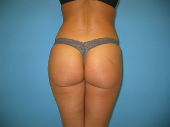 Brazilian buttock lift Beverly Hills after 986145