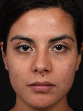 eMatrix for Acne Scarring in Hispanic Skin
