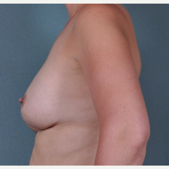 35 Year Old woman with breast implant revision before 3617098