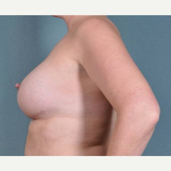 35 Year Old woman with breast implant revision after 3617098