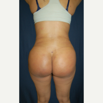 18-24 year old woman treated with Butt Augmentation after 3079673