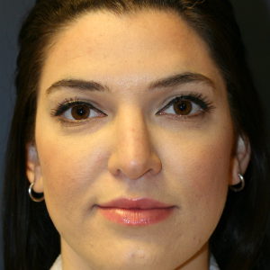 25-34 year old woman treated with Rhinoplasty before 3559810
