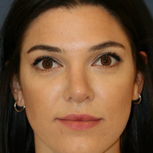25-34 year old woman treated with Rhinoplasty after 3559810