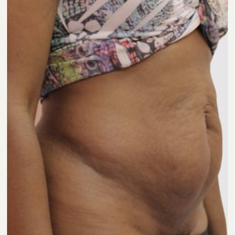 35-44 year old woman treated with Tummy Tuck before 2066834