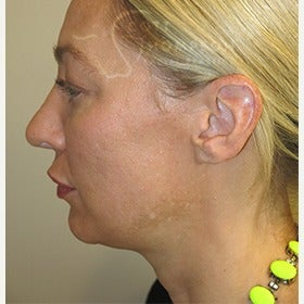 41 year old woman with MACS facelift (mini facelift) before 1606889