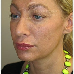 41 year old woman with MACS facelift (mini facelift) 1606889