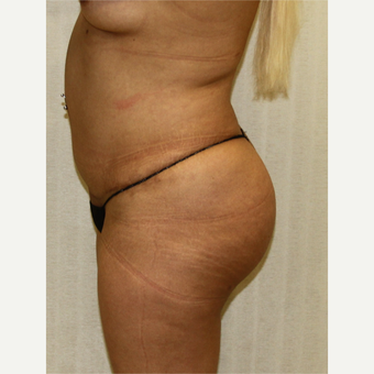 25-34 year old woman treated with Fat Transfer before 3163483