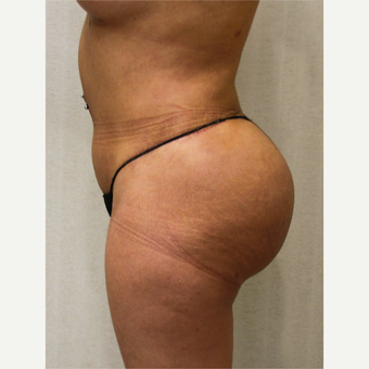 25-34 year old woman treated with Fat Transfer after 3163483