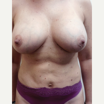 35-44 year old woman treated with Mommy Makeover after 3458229