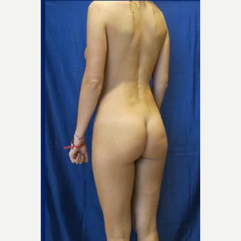 25-34 year old woman treated with Butt Implants before 3481431