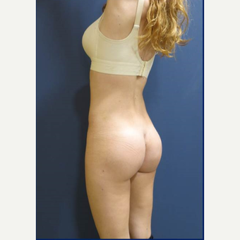 25-34 year old woman treated with Butt Implants after 3481431