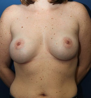 37 Year Old Revision Silicone Breast Implant Replacement
