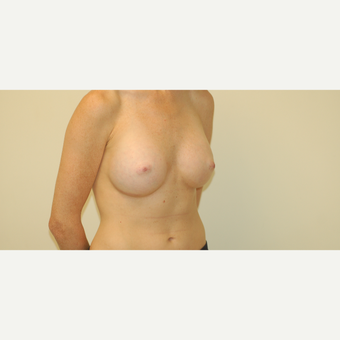 25-34 year old woman treated with Breast Augmentation after 3032503