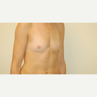 25-34 year old woman treated with Breast Augmentation before 3032503