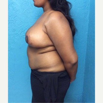 18-24 year old woman treated with Breast Reduction after 3791358