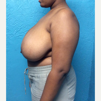 18-24 year old woman treated with Breast Reduction before 3791358