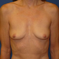 Breast Implant Removal after 2267583