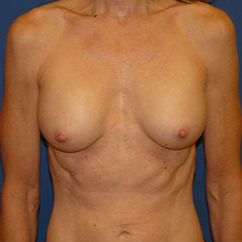 Breast Implant Removal before 2267583