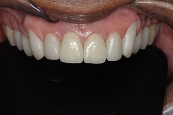 45-54 year old man treated with Tooth Repair after 2788288