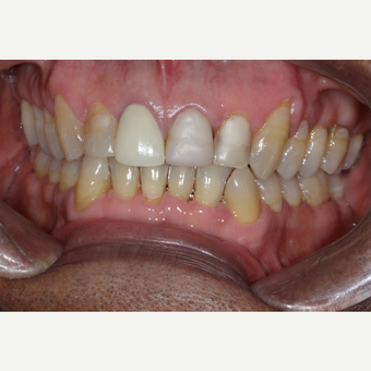 45-54 year old man treated with Tooth Repair before 2788288
