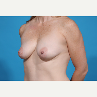 35-44 year old woman treated with Breast Lift with Implants before 3777067