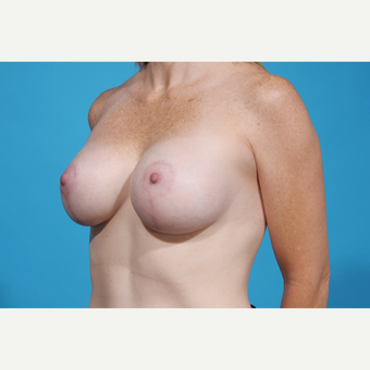 35-44 year old woman treated with Breast Lift with Implants after 3777067