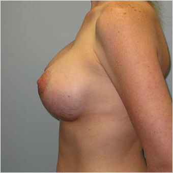 27 year old woman treated with Breast Augmentation after 3468227