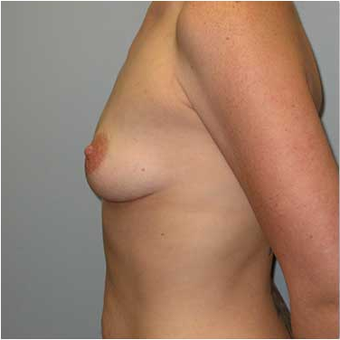 27 year old woman treated with Breast Augmentation before 3468227