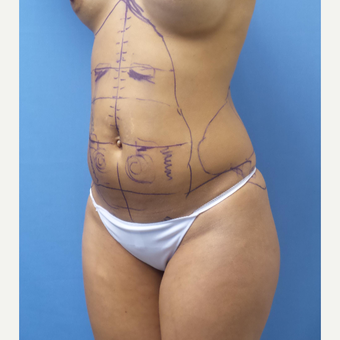 35-44 year old woman treated with Smart Lipo before 3097224