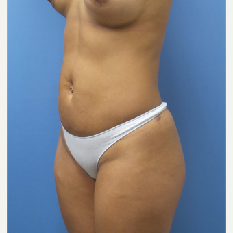 35-44 year old woman treated with Smart Lipo after 3097224