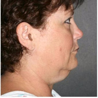 Woman treated with Chin Liposuction