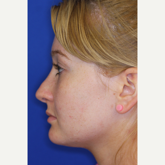 18-24 year old woman treated with Revision Rhinoplasty before 3219863