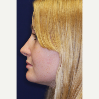 18-24 year old woman treated with Revision Rhinoplasty after 3219863