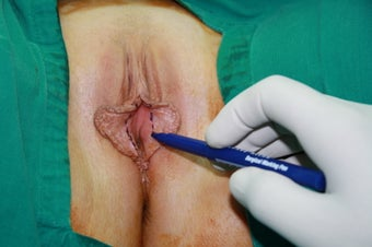 30 years women underwent labiaplasty before 842315