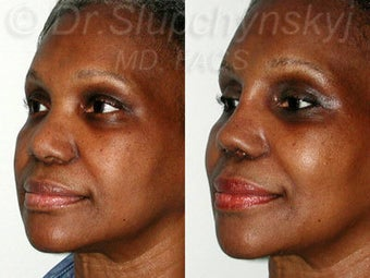Female African American Revision Rhinoplasty  after 1384591