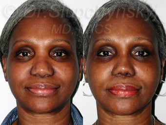 Female African American Revision Rhinoplasty  before 1384591