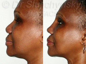 Female African American Revision Rhinoplasty  1384591