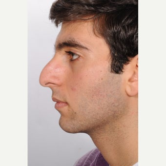 Rhinoplasty before 2595461
