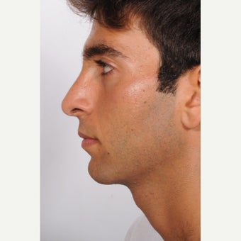Rhinoplasty after 2595461