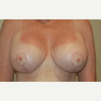 55-64 year old woman treated with Breast Implant Revision after 3049696