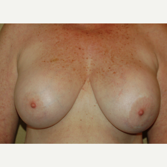 55-64 year old woman treated with Breast Implant Revision before 3049696