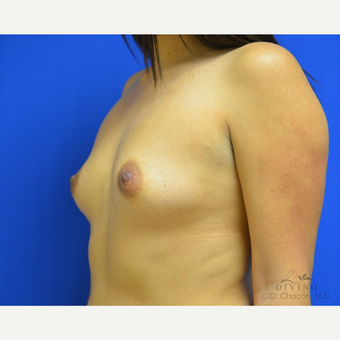 25-34 year old woman treated with Breast Augmentation before 3419099
