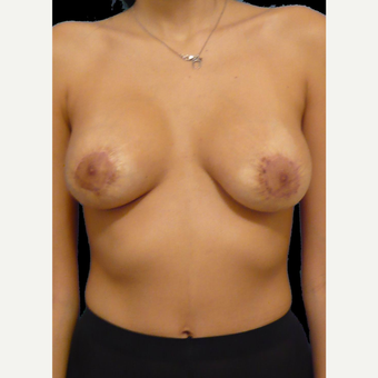18-24 year old woman treated with Breast Lift after 3742410