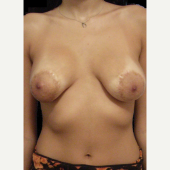 18-24 year old woman treated with Breast Lift before 3742410