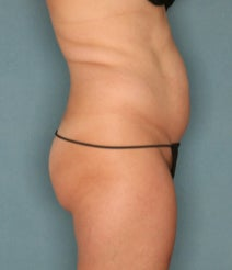 35-44 year old woman treated with Velashape before 1580371