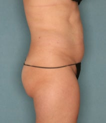 35-44 year old woman treated with Velashape after 1580371